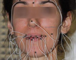 EMA - Sensors on lips